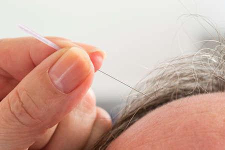 acupuncture: Close-up Of Senior Man Receiving Acupuncture Treatment