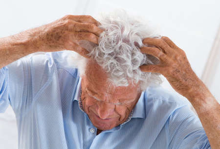 scalp: an older man has an irritated scalp