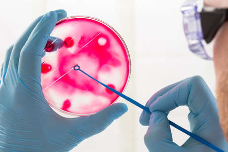 an inoculation: microbiologist hand cultivating a petri dish whit inoculation loops