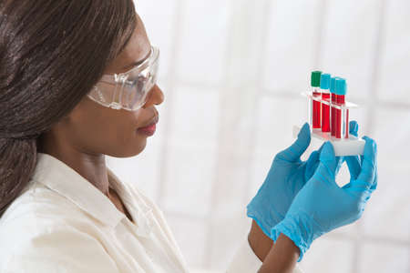 doctor care: african lab assistant  with rack of blood test