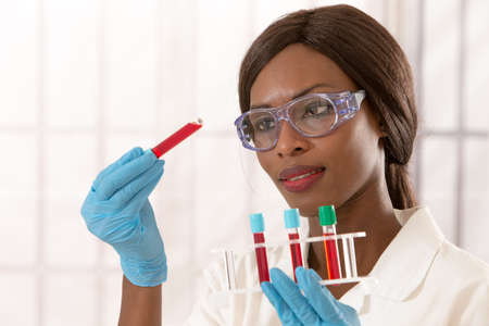 science education: african lab assistant  with rack of blood test