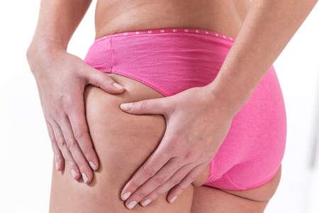 cuerpo femenino: Perfecto cuerpo femenino en busca de la celulitis