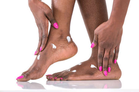 Close-up woman applying moisturizer cosmetic cream on foot on light background Stockfoto