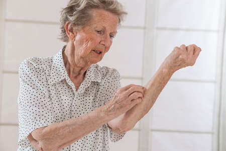 senioor woman scratchingand itching her arm intensly Archivio Fotografico