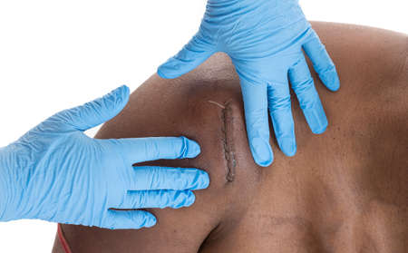 flesh surgery: nurse palping an Hematoma onshoulder under scars on black woman