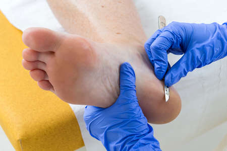 Woman receiving podiatry treatment- podiatrist chiropodist cleaning womans feet
