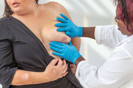 Abscess under breast area of suppuration. -Woman with Verneuils disease or hidrosadenitis 35-40 years old