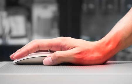 不適切な姿勢によって引き起こされる手首の痛みを持つコンピューターのマウスを持っている手