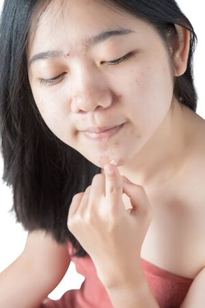 woman using acne cream isolated on white background. Stock Photo