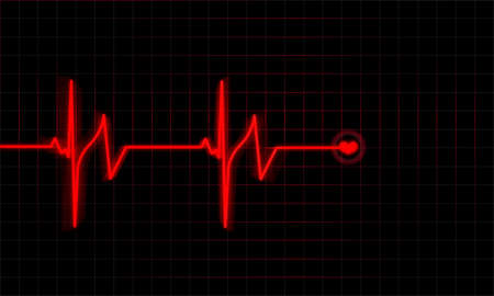 Heartbeat  Stock Photo - 12733854