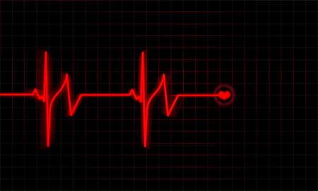 ekg: Heartbeat