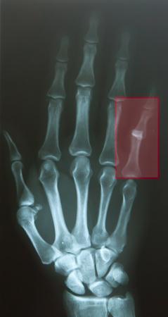 luxacion: Finger dislocar después del accidente