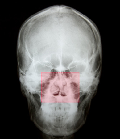 X ray of nasal bone fracture after accident