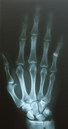 dislocation: Finger dislocar después del accidente
