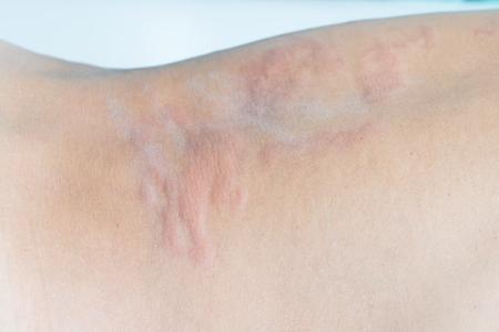 pokrzywka: Bliska obraz ciała człowieka cierpi poważne pokrzywka, pokrzywka