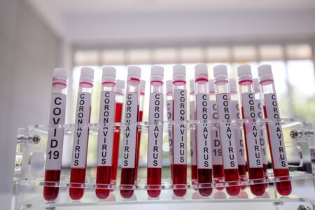 Close-Up on Covid 19 blood tube for Vaccine research in Laboratory on background of Scientific Lab.