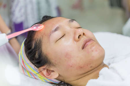 Beauty treatment of face skin with high frequency infrared spot or laser spot remover in SPA center. Stock Photo