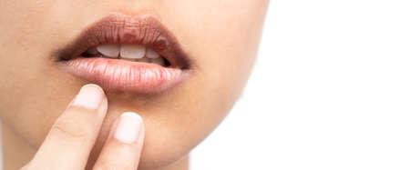여성의 건조한 입술