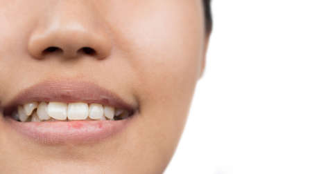 Women with oral health problems