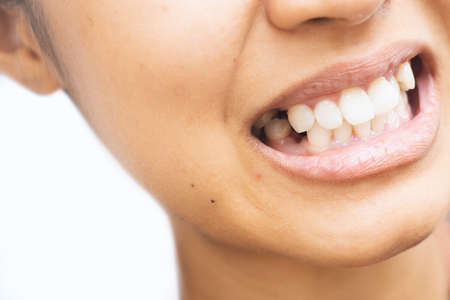 Tooth extraction and oral health.
