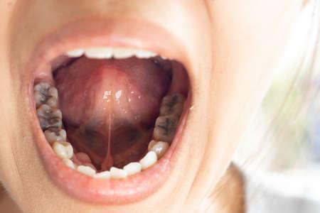 Chirurgia dentale e problemi di salute orale.