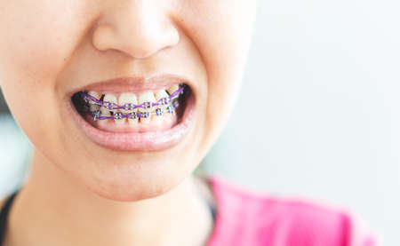 Women braces and is dirty, not beautiful. Stok Fotoğraf