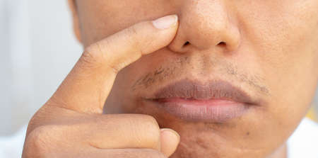 Acne problems on the nose of men