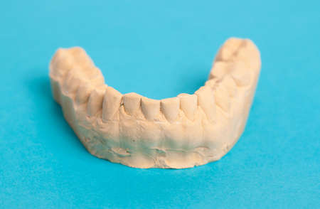 prothetic: jaw prosthesis made from plaster on blue background