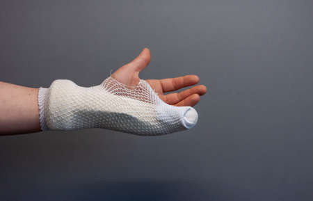 injured arm in cast bandage for healing