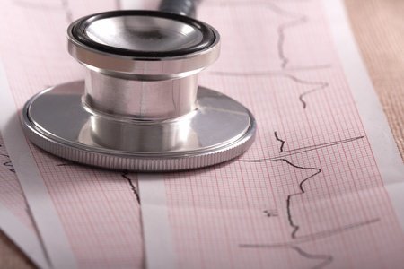 stethoscope & cardiogram Stock Photo - 11661613