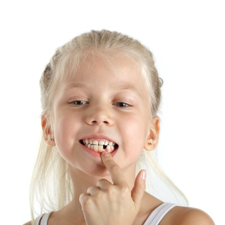girl teeth: Little girl with missing front teeth