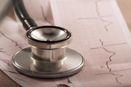 stethoscope: metal stethoscope on cardiogram
