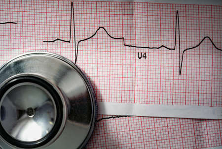 Stethoscope head lying at cardiogram paper, cardiogram sheet, cardiology conceptual. Standard-Bild