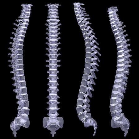 黒い背景に脊柱 x 線をレンダリングします。 写真素材