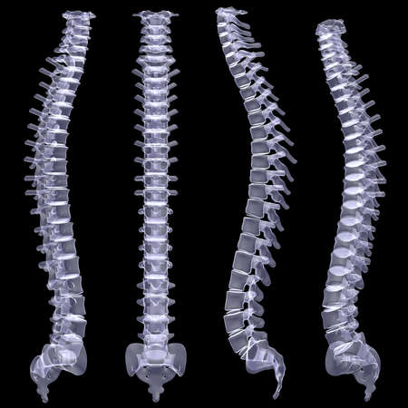 Human spine  X-ray render on a black background