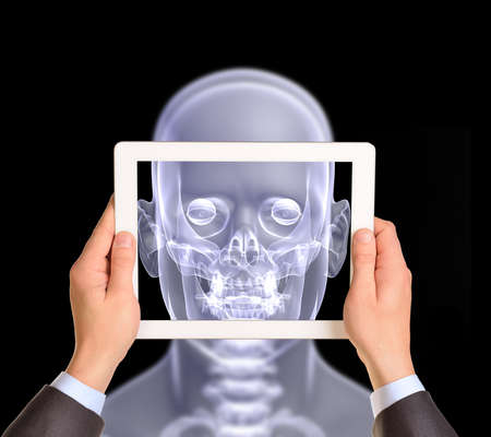 jawbone: Man hands using tablet pc. Image of x-ray head on tablet screen Stock Photo