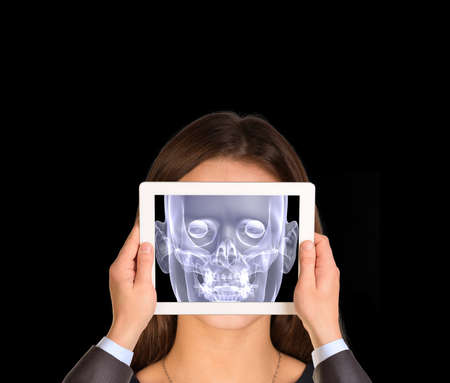 rentgen: Hands holding tablet. On tablet screen x-ray image of head. Isolated black background