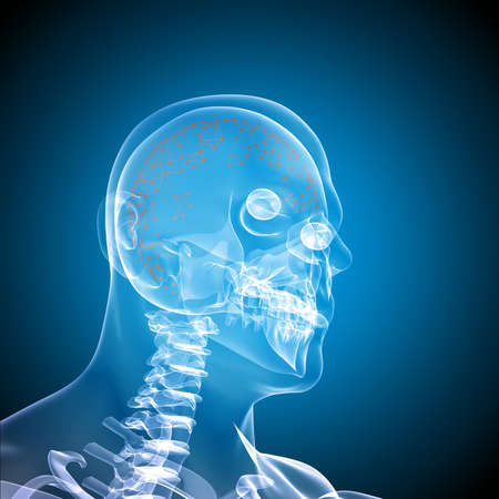 radiological: Side face skull x-ray image on blue background
