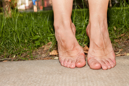 callus: Female tired feet with redness and marks from footwear Stock Photo