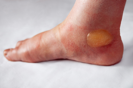 Huge painful blister on the burnt foot Stock Photo