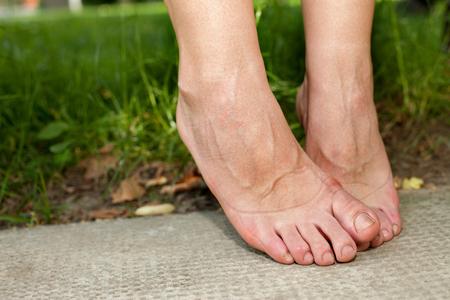 여자들이 발목과 발을 부 었어.