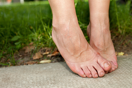 Womans swollen ankles and feet