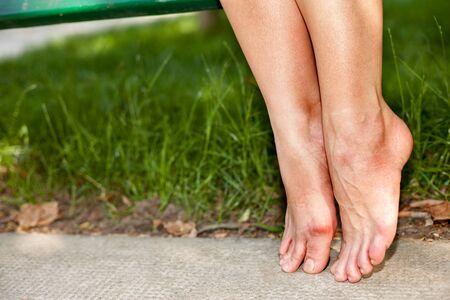 callus: Female sore feet with redness on the ground Stock Photo
