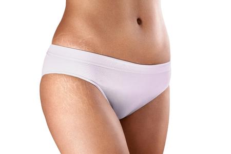 gros plan des hanches féminins avec des vergetures