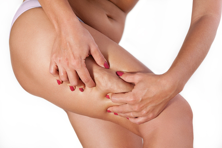 Female cellulite on thigh squeezed with her hands Standard-Bild