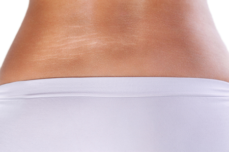 Woman body with strong stretch marks Standard-Bild