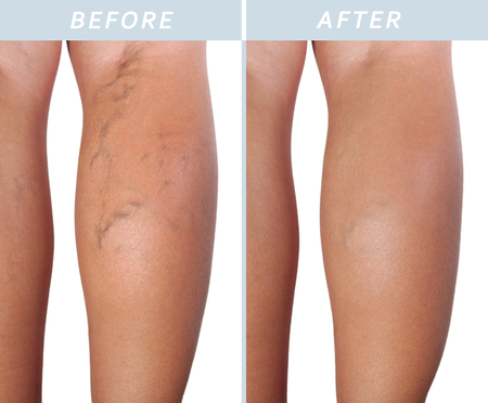 Treatment of varicose before and after. Varicose veins on the legs. Stockfoto - 100984522