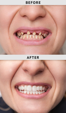 female smile after and before dental crown installation process Stock Photo