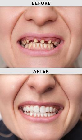 Sonrisa femenina antes y después del proceso de instalación de la corona dental.