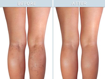 Weibliches gesundes Bein und die betroffenen Krampfadern, isoliert auf weiß Standard-Bild